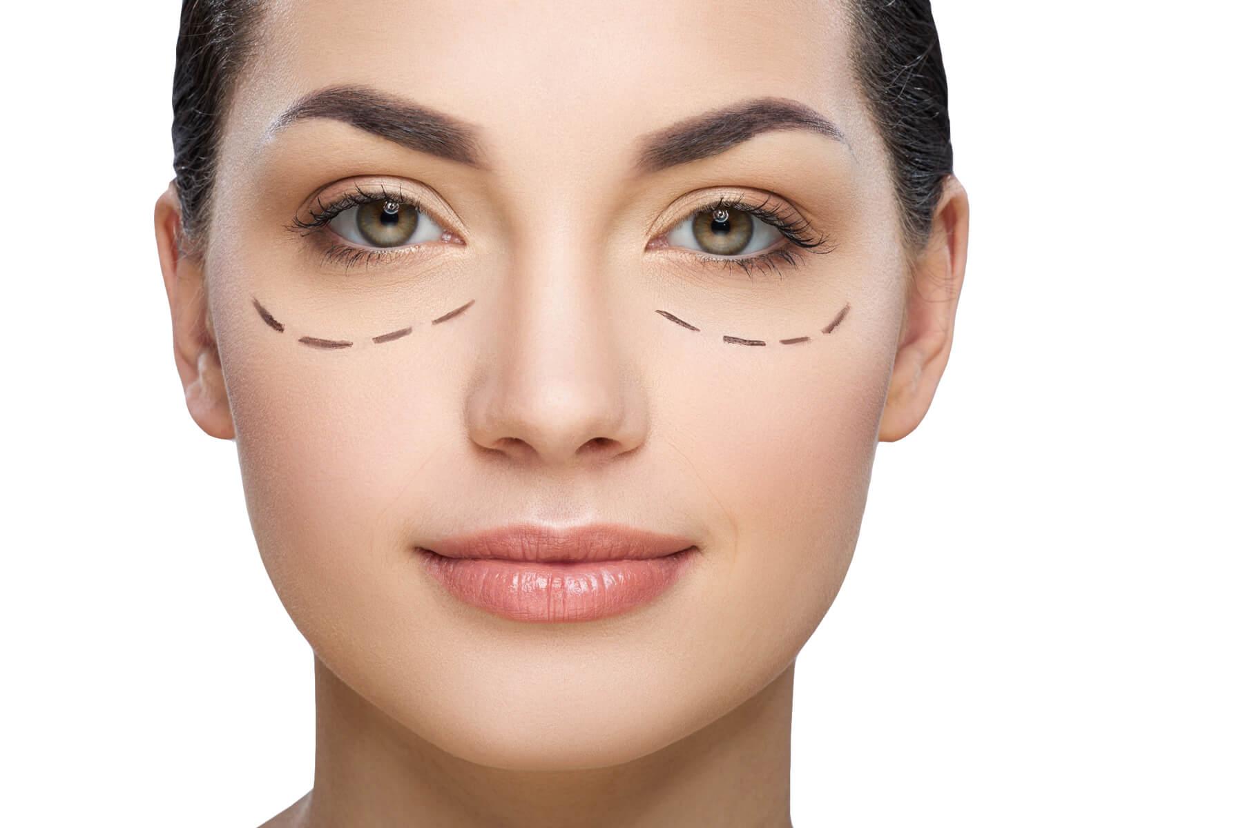 Eliminar las bolsas debajo de los ojos sin cirugía